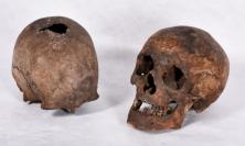 The Holywell Skulls (Property of the British Jesuit Province. Image copyright Stonyhurst College)